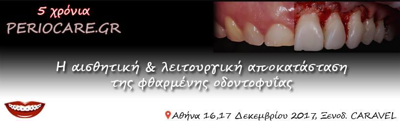 Η αποκατάσταση της φθαρμένης οδοντοφυΐας - Omnipress