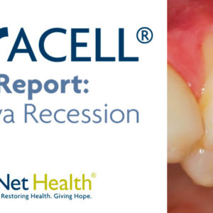 Patient with severe gum recession treated with Oracell.
