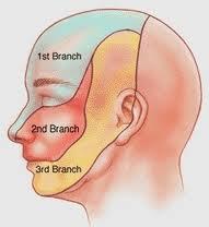 Εικ.3: Οι περιοχές αισθητικής νεύρωσης του τριδύμου νεύρου