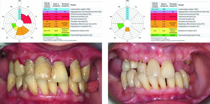 Σύγκριση της κλινικής κατάστασης κατά την αρχική μοριακή-βιολογική εξέταση (Α) και την αντίστοιχη εξέταση στους έξι μήνες (Β)
