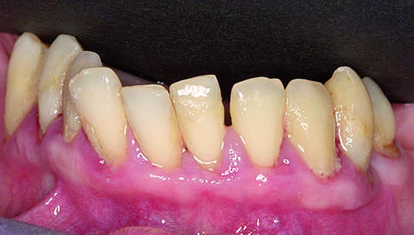 Η κατάσταση των δοντιών και των ούλων της κάτω γνάθου.