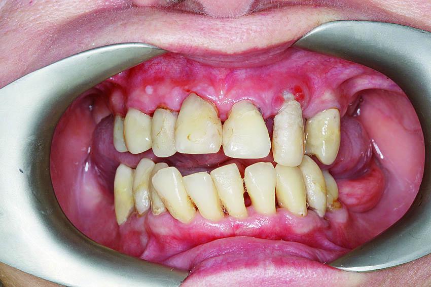 Κλινική βελτίωση των ούλων μετά τον καθαρισμό, με μείωση του οιδήματος, της αιμορραγίας και της βακτηριακής πλάκας