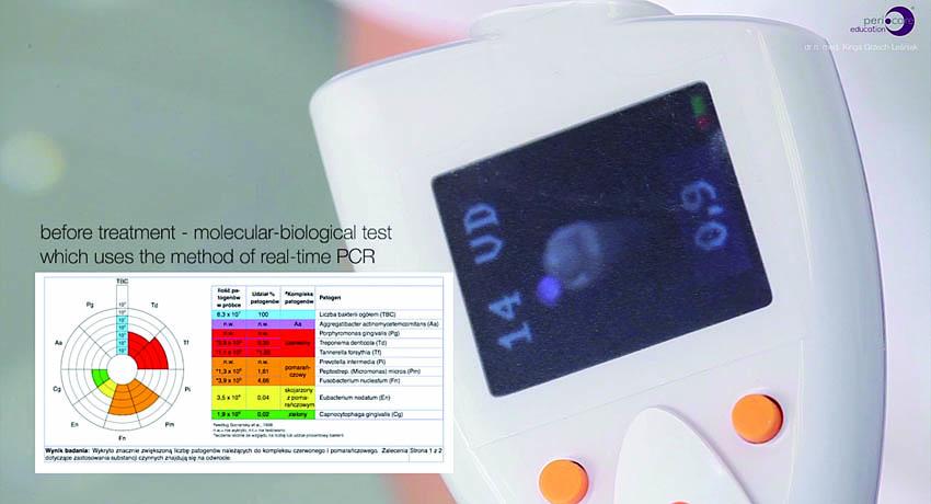 Η συσκευή της ηλεκτρονικής περιοδοντικής μήλης και η μοριακή-βιολογική εξέταση