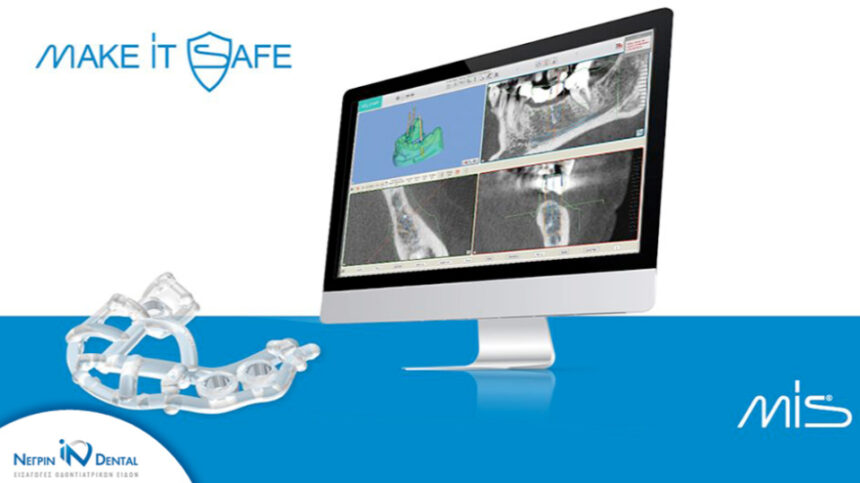 MGuide MIS | Απλότητα και ακρίβεια στην Ψηφιακή Εμφυτευματολογία | ΝΕΓΡΙΝ ΙΝ Dental
