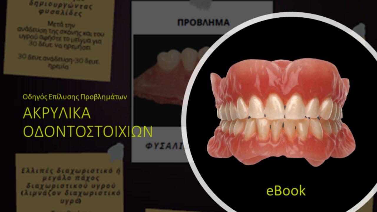 Οδηγός επίλυσης προβλημάτων σε ακρυλικά οδοντοστοιχιών από την Kulzer!