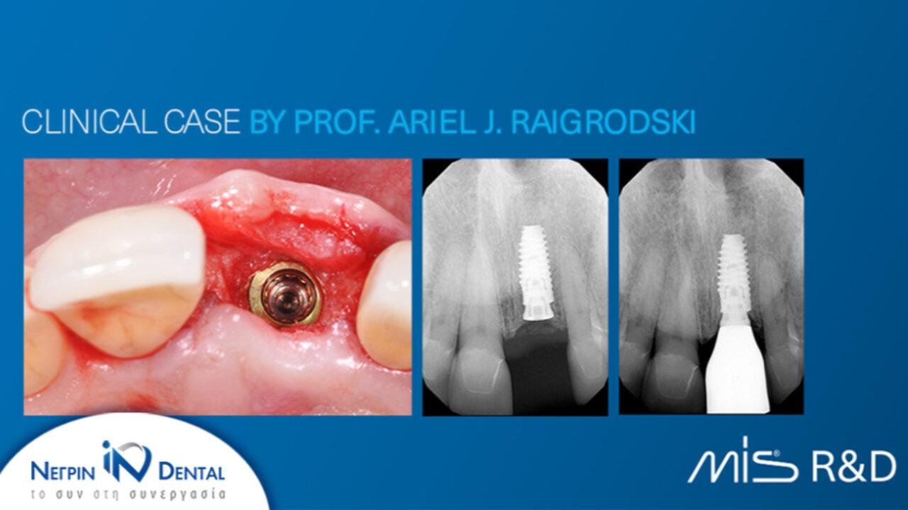 Παρουσίαση κλινικού περιστατικού του Prof. Raigrodski | MIS Academy