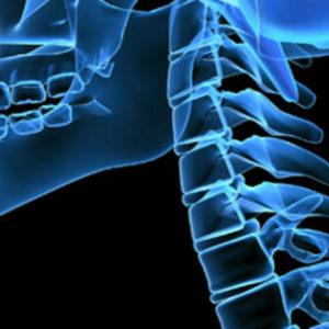 Οι ασθενείς δεν γνωρίζουν τους κινδύνους από τη θεραπεία της οστεοπόρωσης