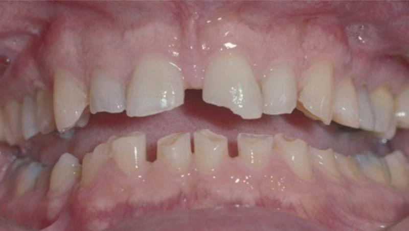 Αυτός ο ασθενής είναι βρυγμομανής και δεν είναι ένα καλός υποψήφιος για συντηρητική αποκατάσταση των δοντιών του. Η έντονη σύγκλειση είναι σχεδόν πάντα μία αρνητική κατάσταση για τη διατήρηση δοντιών με αμφίβολη πρόγνωση.