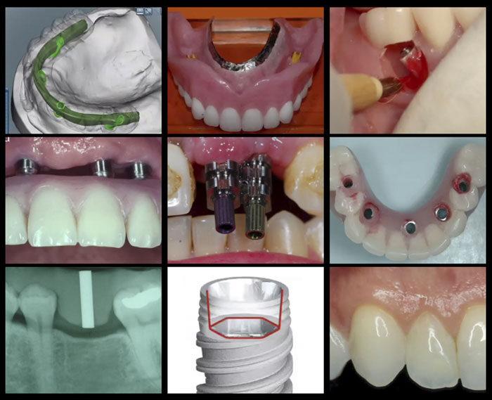 A-Z in Restorative Implant Dentistry