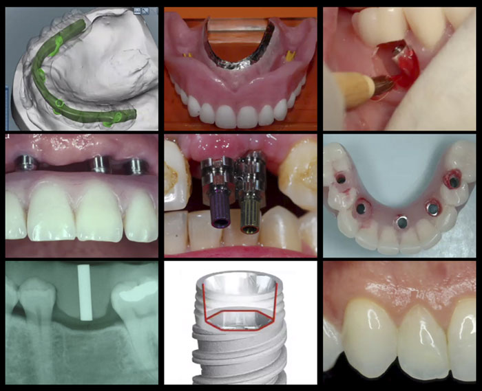 A-Z in Restorative Implant Dentistry