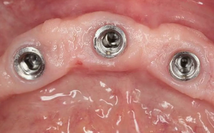 The Biologic Prosthetic Interface in Modern Esthetic Implantology - Revealing the Hidden Secrets of the Transgingival Part