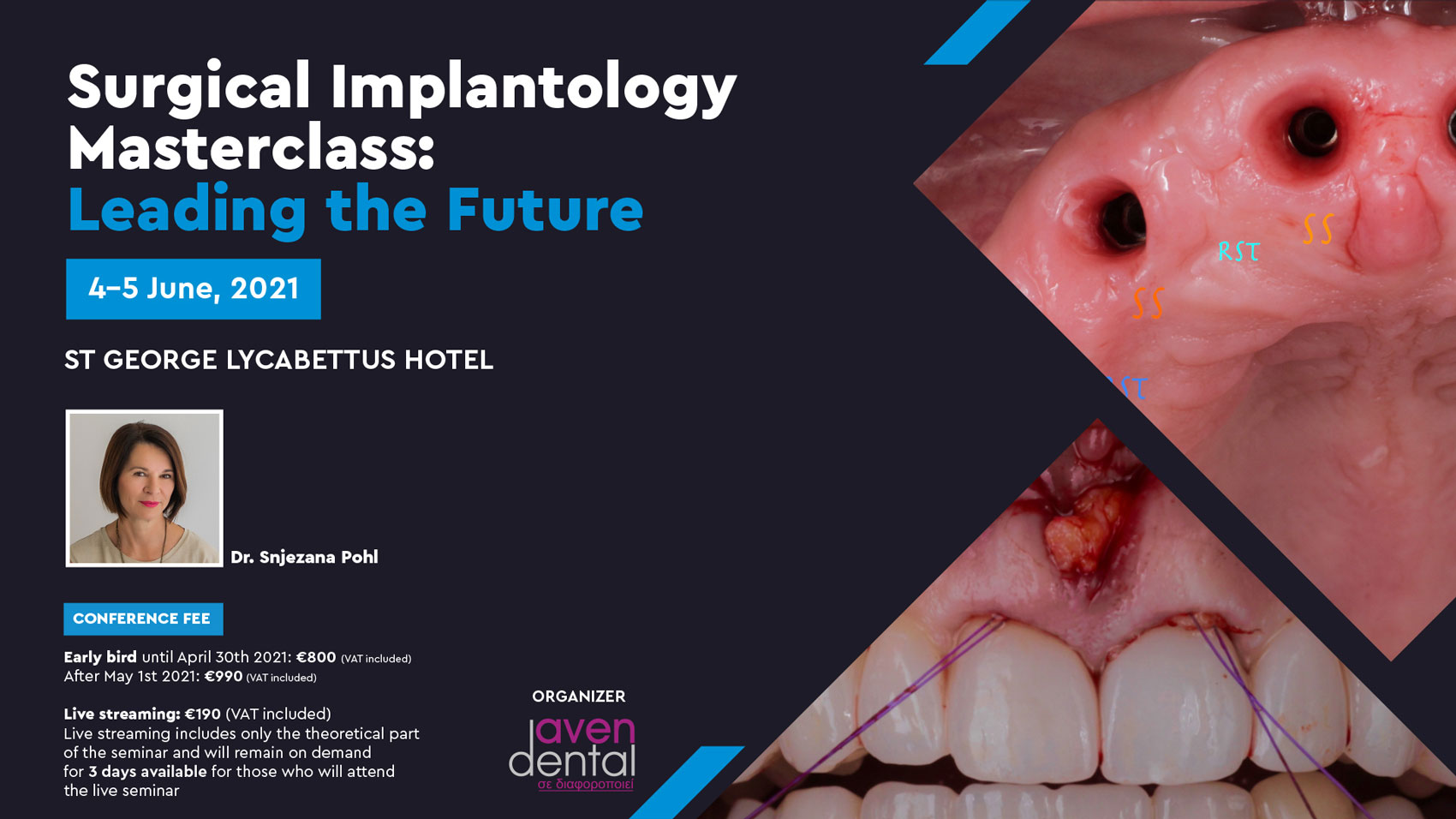 Surgical Implantology Masterclass