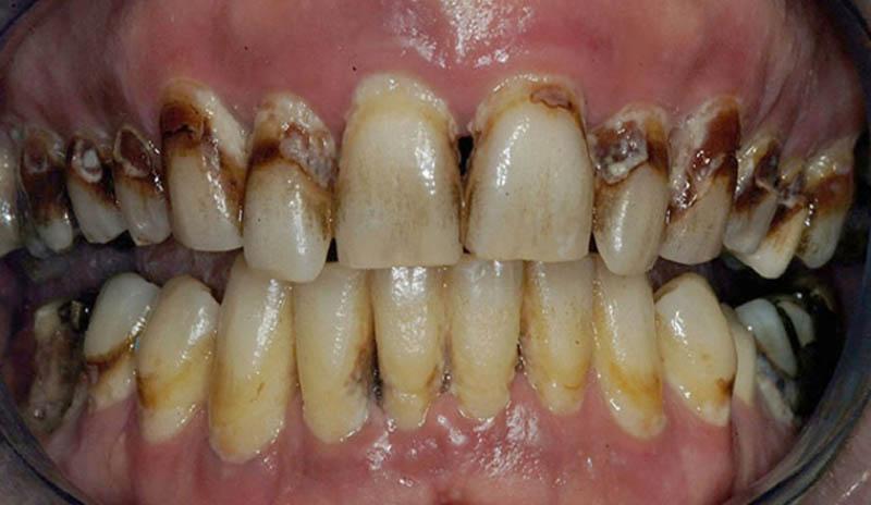 Αυτός ο ασθενής έχει περιοδοντικούς θύλακες με βάθος 6 χιλιοστά και περισσότερο. Υπάρχουν επίσης μεγάλες τερηδονικές βλάβες. Η διάσωση αυτών των δοντιών πιθανότατα δεν αποτελεί μία βιώσιμη λύση.
