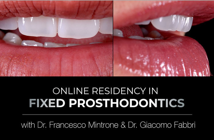 Online Residency Program in Fixed Prosthodontics - Esthetic and Functional Rehabilitation of Natural Teeth
