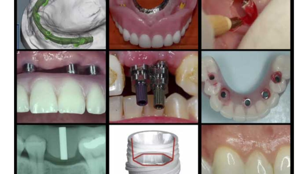 A-Z in Restorative Implant Dentistry Series (16 Lecture Certificate Series)