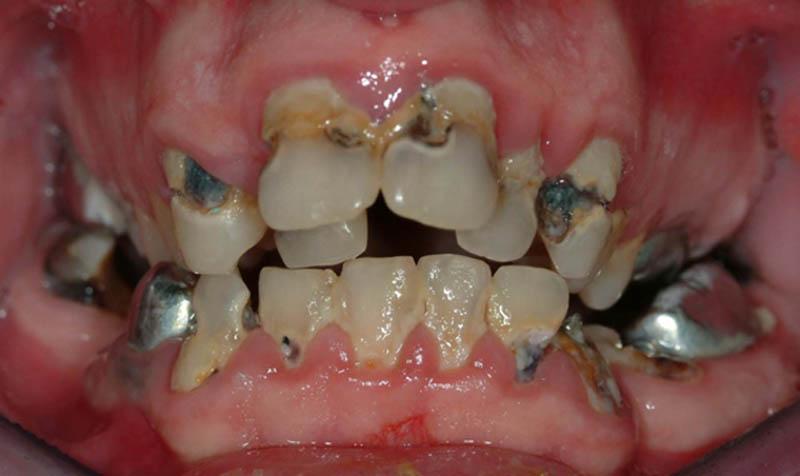 Αυτός ο νεαρός ασθενής έχει έντονες τερηδόνες, ανωμαλία σύγκλεισης και μέτρια περιοδοντική νόσο. Δεν αποτελεί έναν καλό υποψήφιο για τη διατήρηση των δοντιών.
