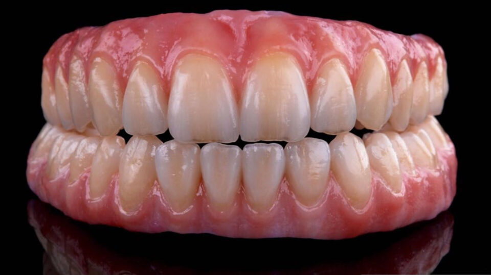 Implant Prosthodontics – From Single to Fully Edentulous Solutions
