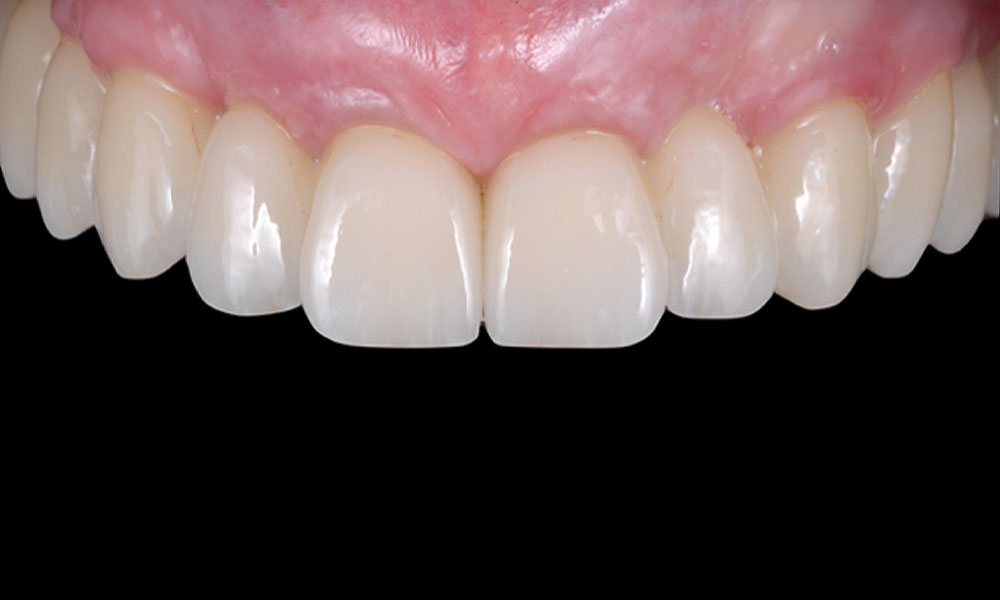 Edentulous Implant Solutions - From Patient to Treatment to Final