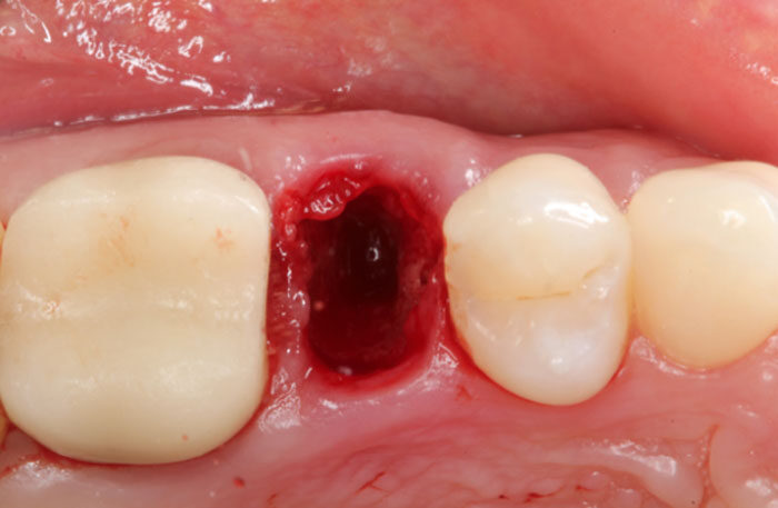 Extraction Socket - Preservation/Grafting; Immediate vs Delayed Implants; Pontic Site Development
