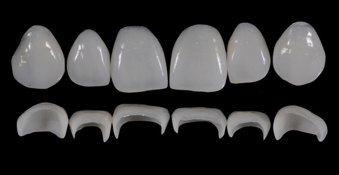 Prosthetic Rehabilitation on Natural Teeth - Predictable, Esthetic and Systematic Steps