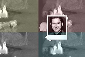 Κάθετη και οριζόντια αύξηση των σκληρών και μαλακών ιστών με τη χρήση κατευθυνόμενης οστικής αναγέννησης (GBR) - Εκπαιδευτής: Sascha Jovanovic