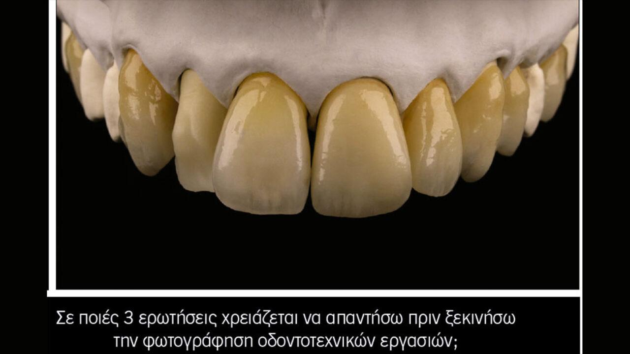Φωτογραφίζω τις οδοντοτεχνικές εργασίες μου