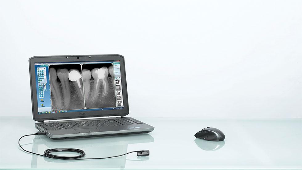 Ψηφιακή ακτινογραφία με σένσορα Opteo