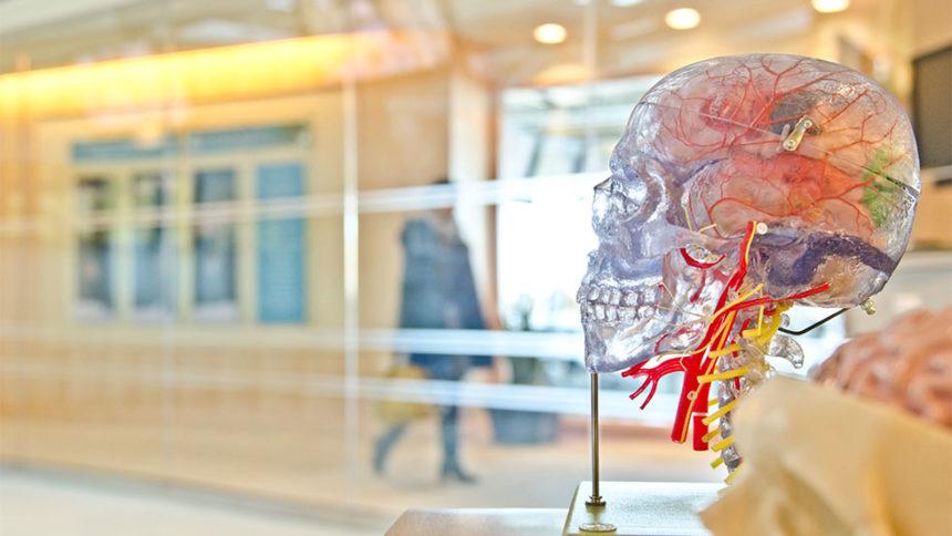 Σύνδεση περιοδοντίτιδας και εγκεφαλικού