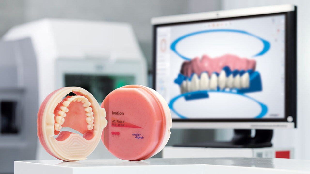 Το Σύστημα Οδοντοστοιχιών Ivotion Denture System φέρνει επανάσταση στην παραγωγή των κινητών προσθετικών αποκαταστάσεων