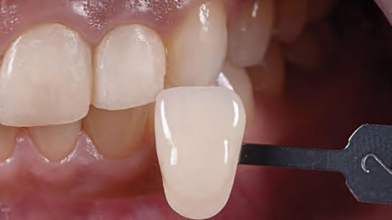 Βήμα προς βήμα το πρωτόκολλό VM9 που χρησιμοποιείται για την επίτευξη ιδανικού χρώματος, μορφολογίας και υφής στεφάνης στην αισθητική ζώνη