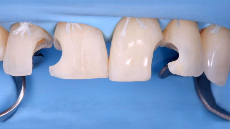 Direct Bonding Restorations - Minimal Invasive Treatment of the Anterior and Posterior Damaged Dentition using Direct Bonded Restorations