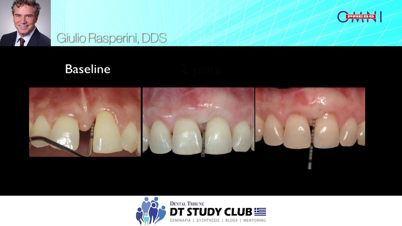 Surgical techniques and biomaterials in periodontal plastic surgery