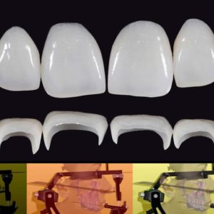 Προσθετικές στρατηγικές σε αποκαταστάσεις στηριζόμενες σε φυσικά δόντια - Εκπαιδευτής: Giacomo Fabbri