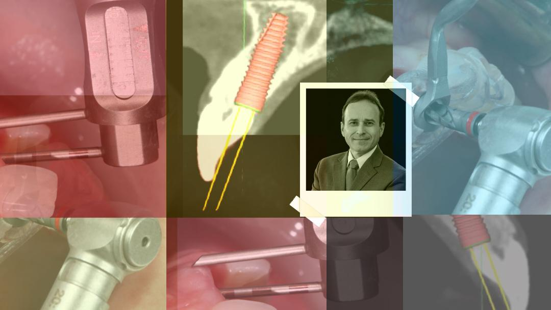 Νέα Χειρουργική Τεχνική ΑΜΕΣΗ ΟΔΟΝΤΟΦΑΤΝΙΑΚΗ ΑΠΟΚΑΤΑΣΤΑΣΗ - Άμεση φόρτιση εμφυτευμάτων σε προβληματικά φατνία - Εκπαιδευτής: Jose Carlos Martins Da Rosa